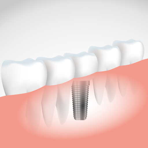 Illustration d'un Implant dentaire